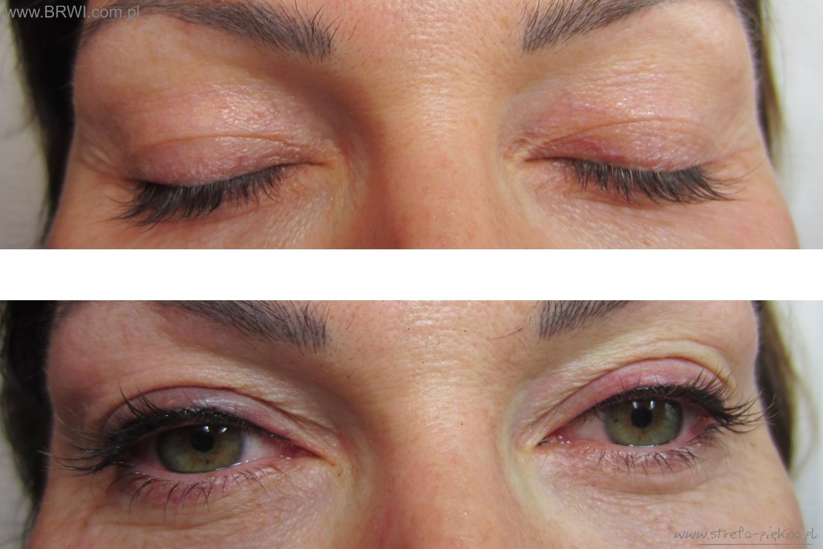 Makijaż Permanentny Salon Urody Strefa Piękna Gliwice Medycyna