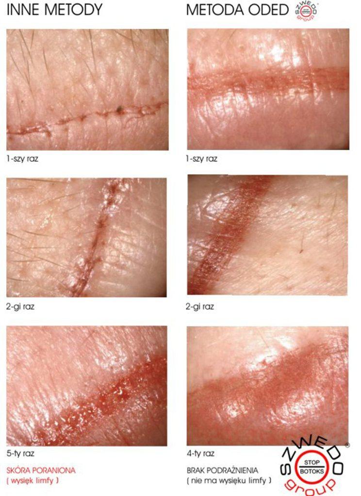 Różne metody makijażu permanentnego ust
